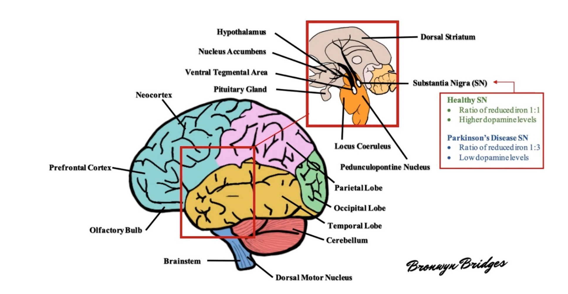 Figure 1. Schematic diagram of the human brain. Several areas of the brain are adversely affected in Parkinson's disease (PD). For example, the substantia nigra exhibits a profound loss of dopaminergic Figure 1. Schematic diagram of the human brain. Several areas of the brain are adversely affected in neurons and altered levels of reduced iron, likely as a result of increased oxidative stress. As the disease Parkinson's disease (PD). For example, the substantia nigra exhibits a profound loss of dopaminergic progresses, other areas of the brain develop lesions, including the dorsal motor nucleus, neocortex, neurons and altered levels of reduced iron, likely as a result of increased oxidative stress. As the prefrontal cortex, locus coeruleus, amygdala, and more (see text for further details)