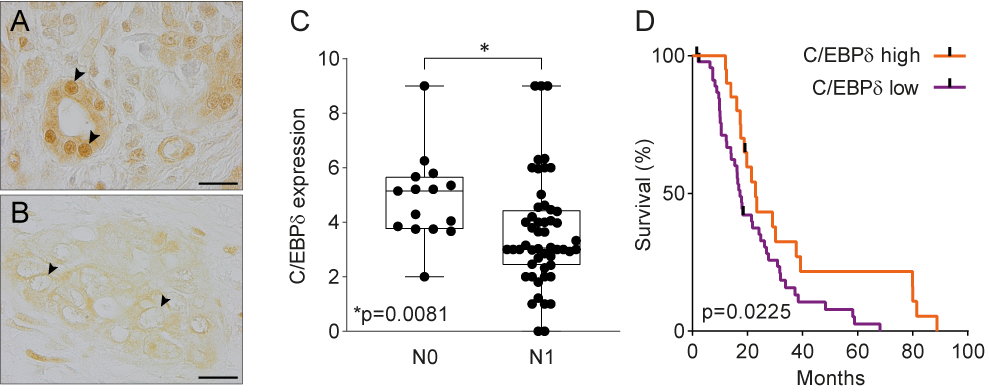 Figure 1: C/EBPδ in PDAC. (A) Normal pancreas duct cells express high levels of C/EBPδ protein. Scale bar is 20 µm.(B) C/EBPδ is lost in PDAC tissue samples. (C) C/EBPδ is significantly lower expressed in samples of patients with lymph node involvement than without. (D) High C/EBPδ-expression associates with improved survival in PDAC patients.
